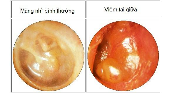 bệnh tai mũi họng